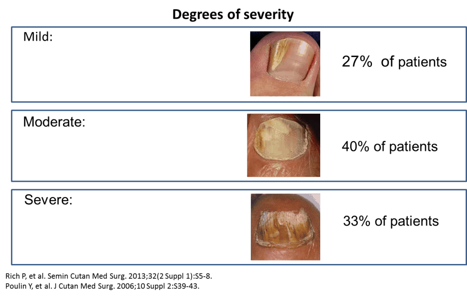 severity of nail fungus: mild, moderate, severe
