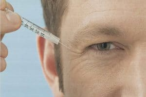 Man with crow's feet receiving botox injection