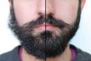 before and after photo: dry, damaged beard vs conditioned, soft beard