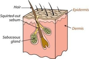 anatomical look at a hair follicle, showing that oil is produced under the skin in a gland and travels up along the shaft of the hair eventually depositing onto the skin.