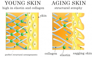 Notice that the aging skin has less collagen and elastin than the young skin. This decrease in structural support is a major reason for sagging and wrinkles.