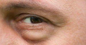 bags under man's eye