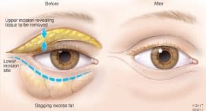 The Before image shows that the bags under the eyes is composed of excess fat. A surgical procedure can be done to remove the excess fat.
