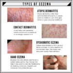 Shows 4 types of Eczema: Atopic Dermatitis, Contact Dermatitis, Dyshidrotic Eczema, Hand Eczema.