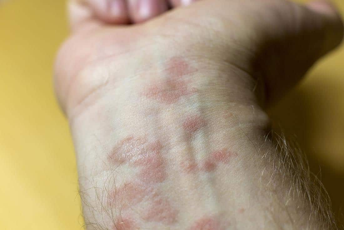 Eczema: Basic Guide...